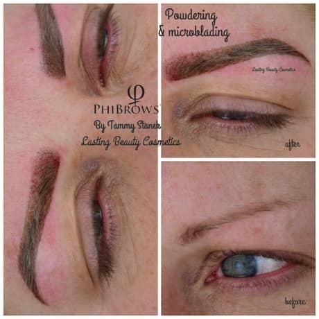 Eyebrow Treatment Madison Wi