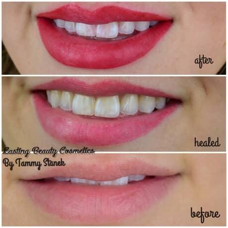fantastic looking lips