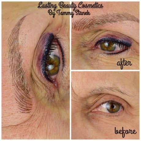 eyebrow treatment cost Madison wi