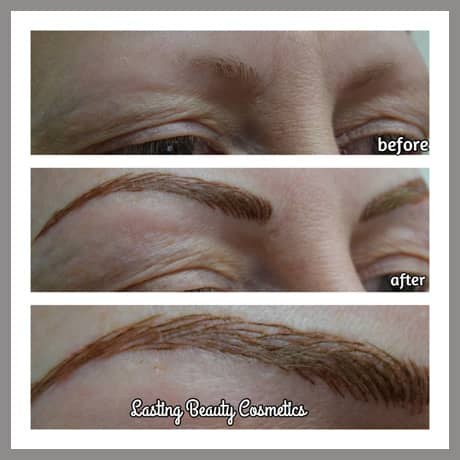Alopecia Service Madison Wi
