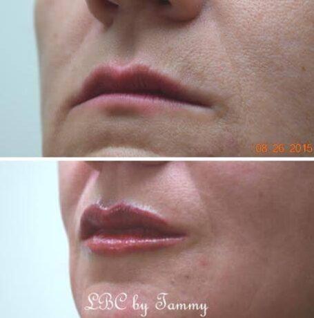 Lips Treatment Madison Wi