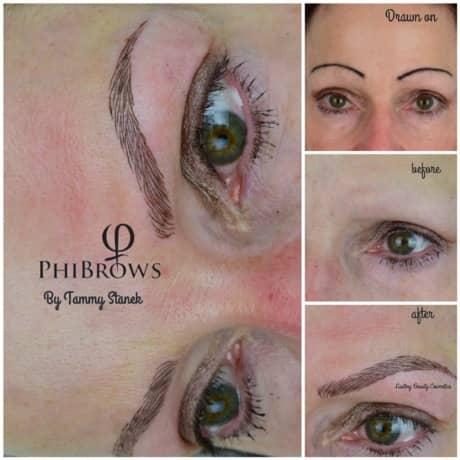 Microblading Alopecia client