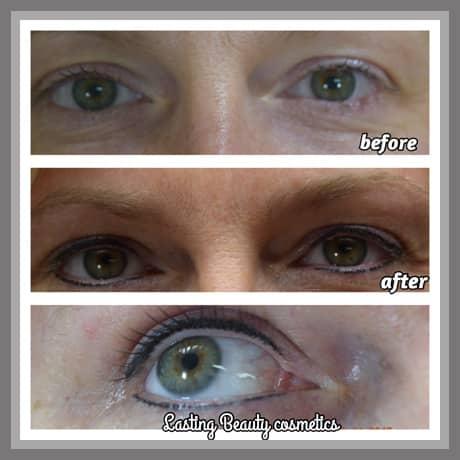 Eyeliner Treatment Madison Wi