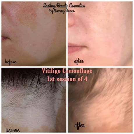 Vitiligo Camouflage Pigmentation service