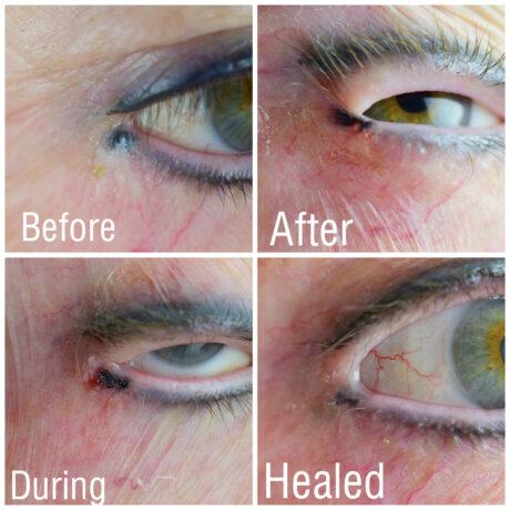 Eyeliner Tattoo Removal