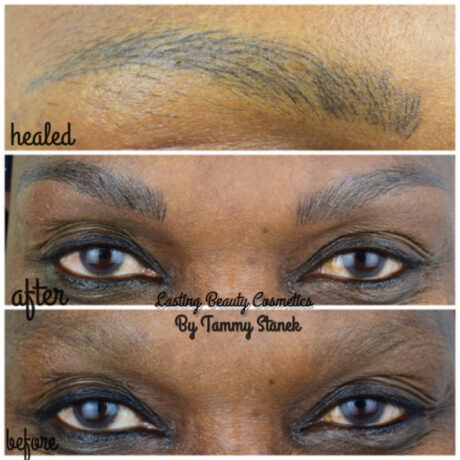 Microblading Eyebrows Treatment