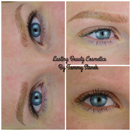 Microbalding Eyebrows Treatment