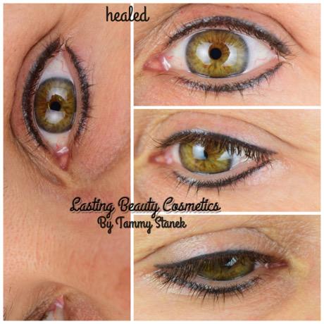 Healed Permanent Eyeliner